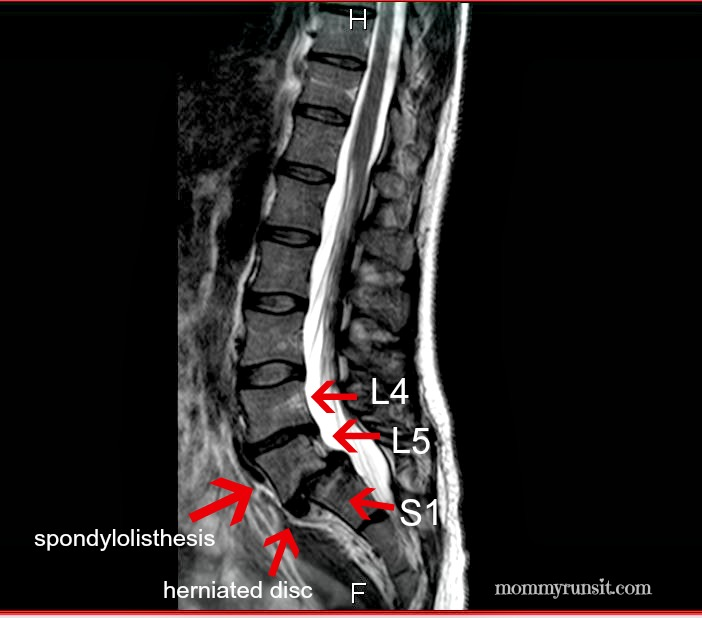 Q+A: Spondylolisthesis, Spinal Fusion, and More | Mommy Runs It